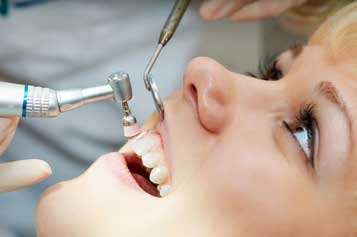 Dentist in Houston, TX - Teeth Cleanings