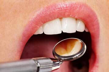 Dentist in Houston, TX - Oral Cancer Screenings