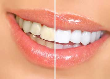 Dentist in Houston, TX - Teeth Whitening