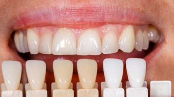 Dentist in Houston, TX - Porcelain Veneers
